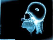Simpson X-Ray